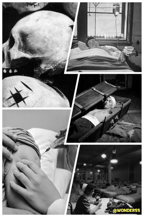 روش های حیرت انگیز روان درمانی در گذشته