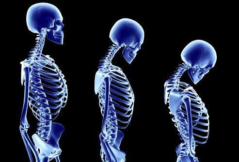 پوکی استخوان و درمان آن در طب سنتی
